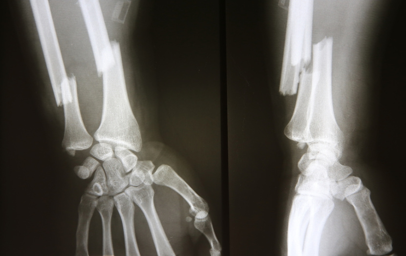 x ray of hand and arm